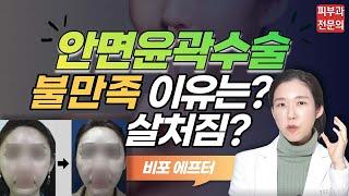 (*Eng) 안면윤곽수술 부작용? 불만족? 볼처짐? 전…