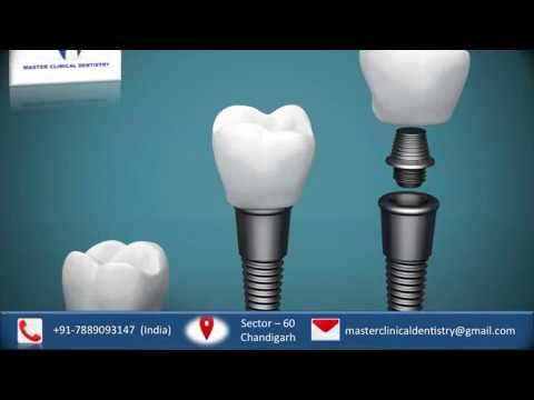 Dental implant training courses