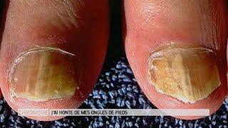 J'ai honte de mes ongles de pieds, que faire ? - Le Magazine de la santé