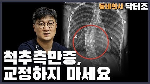 척추측만증, 교정하지 마세요 ㅣ동네의사 닥터조