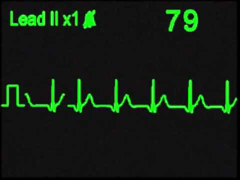 Accelerated Nodal Rhythm - ECG Simulator - Arrhythmia Simulator