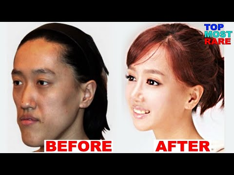 Thumbnail: 50 Korean Plastic Surgery Before and After Photos