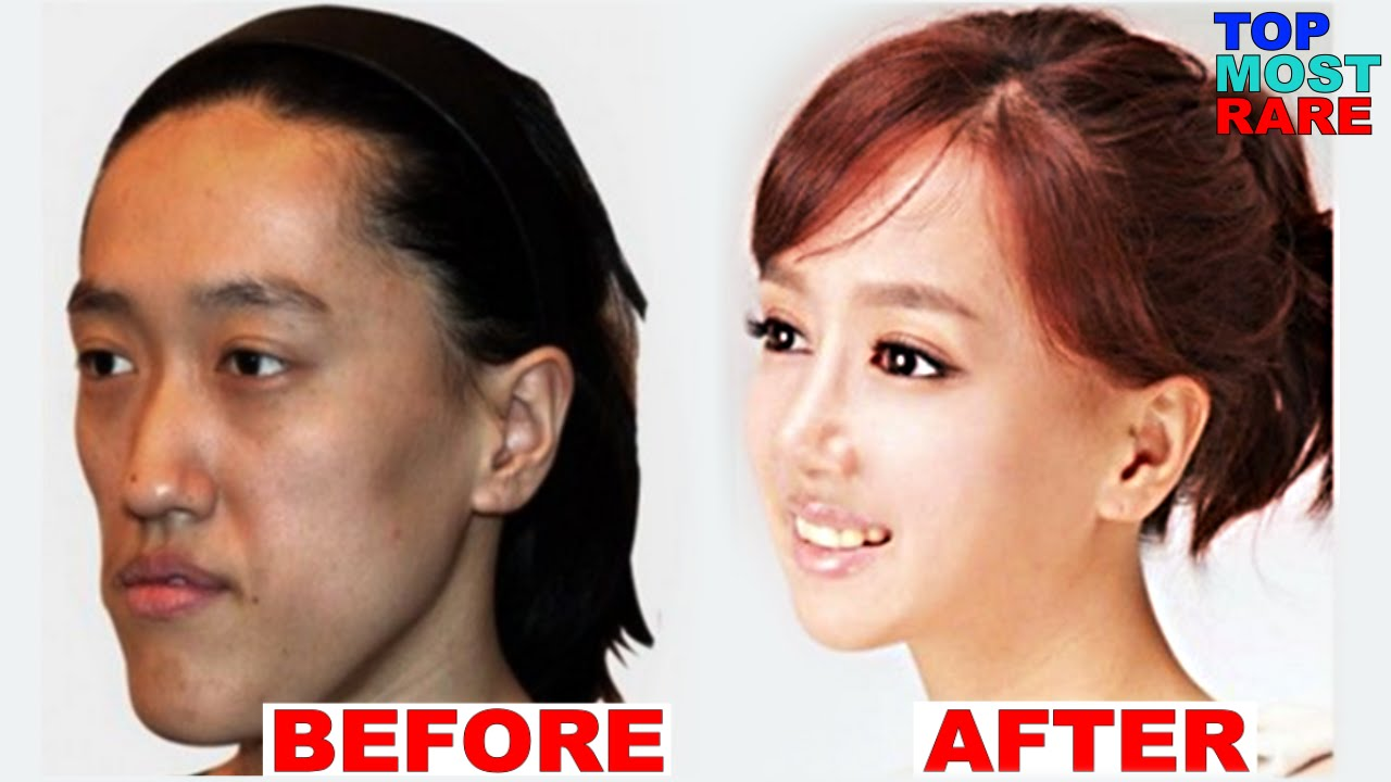 50 korean plastic surgery before and after photos - youtube