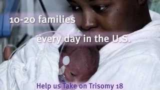 Take on Trisomy 18