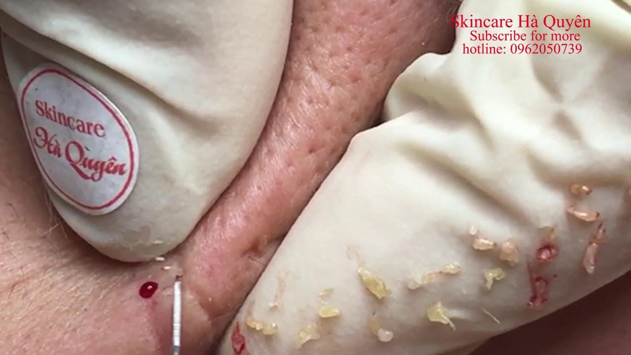  268  Blackheads and Acne treatment in Ha Quyen Spa on 27/06/2020 - Điều trị mụn tại Hà Quyên spa