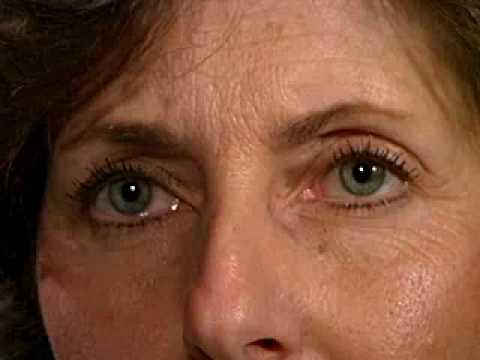 Pupillary Light Reflex - Normal