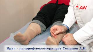 Лечение табакокурения иглоукалыванием.(, 2009-12-15T12:16:56.000Z)