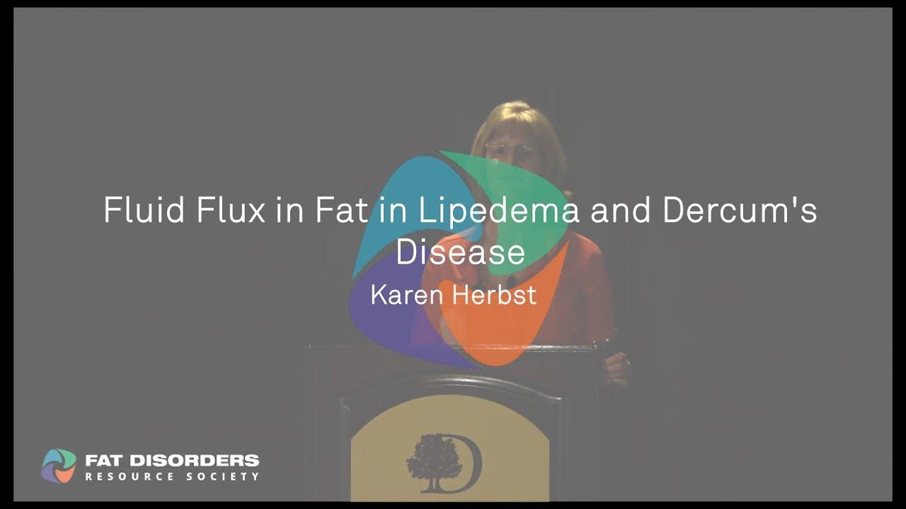 Ar svorio metimas pagerina limfedemą. Naujienų srautas