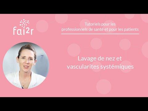 Tutoriel: Lavage de nez et vascularites systémiques