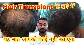 How to Get Best Hair Transplant Result in Crown Area