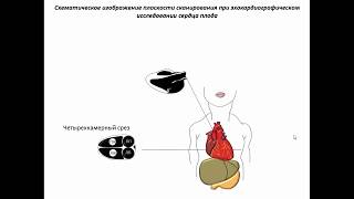Ультразвуковая анатомия сердца плода (II-III триместры)