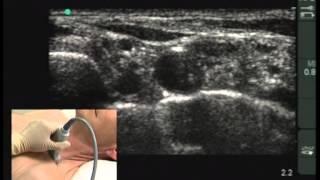 видео Аксиллярные лимфоузлы. Размеры, причины увеличения, лечение