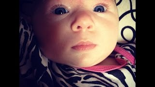 Melody 2 months with Arthrogryposis