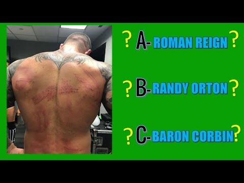 WWE QUIZ - 99% Fail To Guess WWE Superstars With Their BACK?
