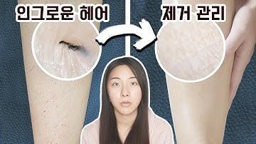 심한 다리털 인그로운헤어 없앤 홈케어 방법 소개해요(원인,염증,관리,뽑기,제거,방지)
