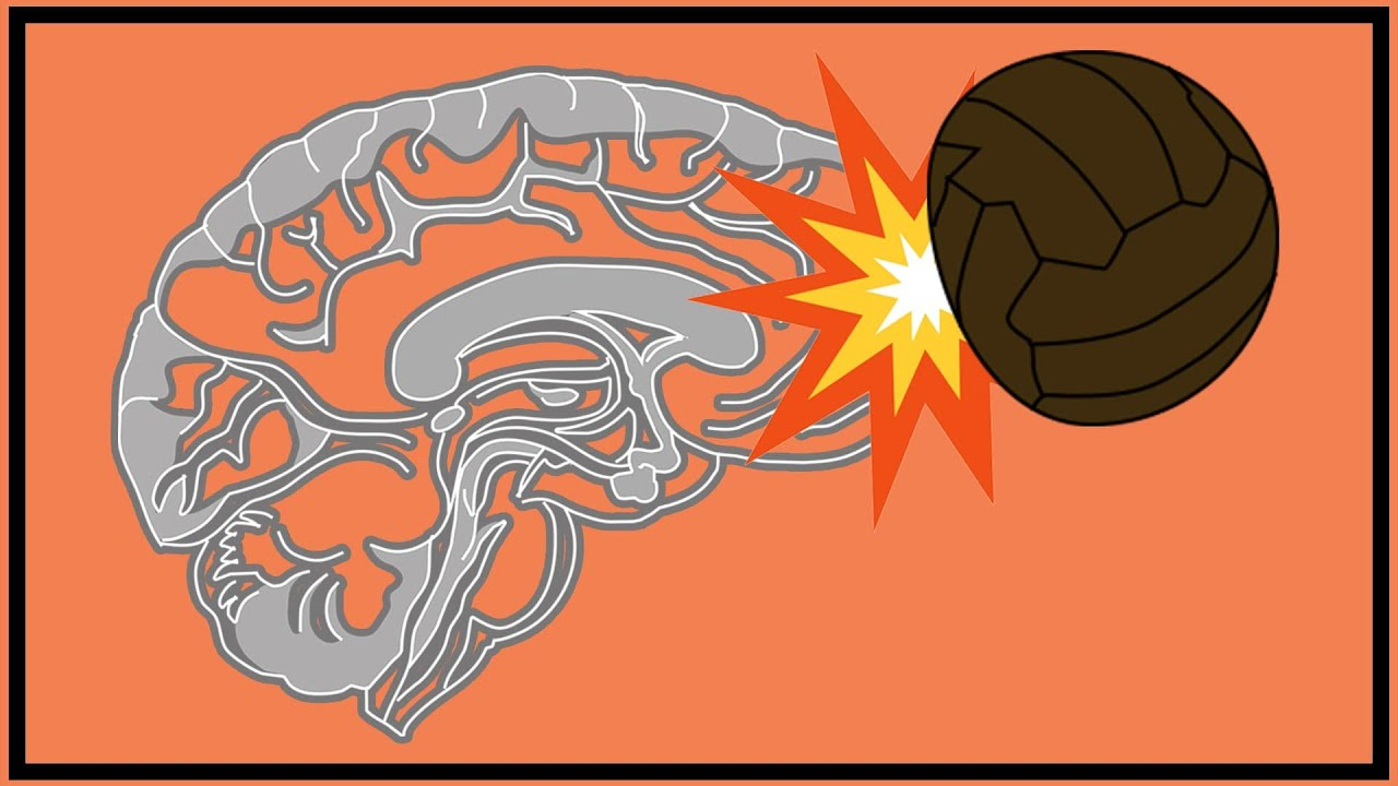Football's Dementia Problem