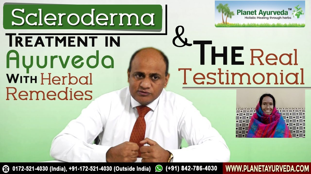 Watch Video Natural Treatment of Scleroderma with Ayurveda - Dr Vikram Chauhan