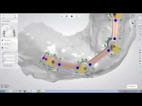 Design eines Rectangle-Steges mit dem 3Shape Dental Designer 16.1.0