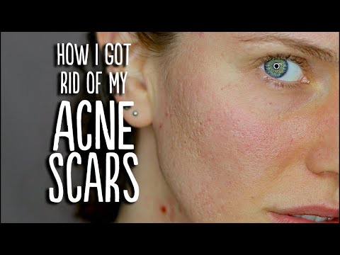 Acne + Scar Update (How I Got Rid Of My Acne Scars)