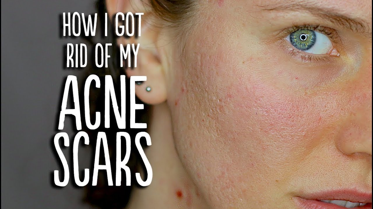 Acne Scar Update How I Got Rid Of My Acne Scars Youtube