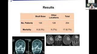 Kondisi Gugun Gondrong yang Sempat Derita Tumor Otak, Sudah Normal tapi Masih Sering Lupa.
