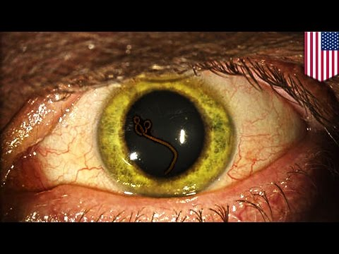 Ebola virus turns doctor's eyes green, virus lurks in eyeballs and testicles - TomoNews
