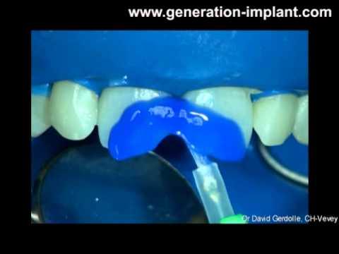 Stratification de composite sur dents antérieurs