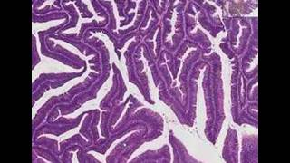 Histopathology Colon--Villous adenoma
