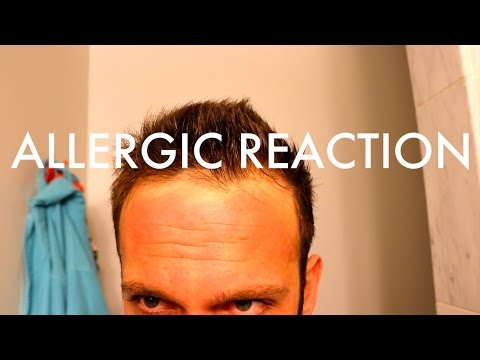 Bad Allergic Reaction