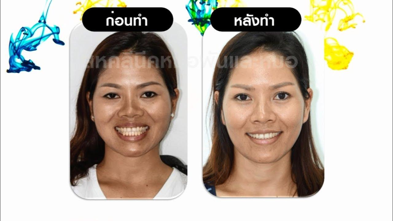 จัดฟัน จัดโครงสร้างใบหน้า - เคสฟันล่างคร่อมฟันบน โครงหน้าเบี้ยวไม่ได้สัดส่วน โดยไม่ผ่าตัด