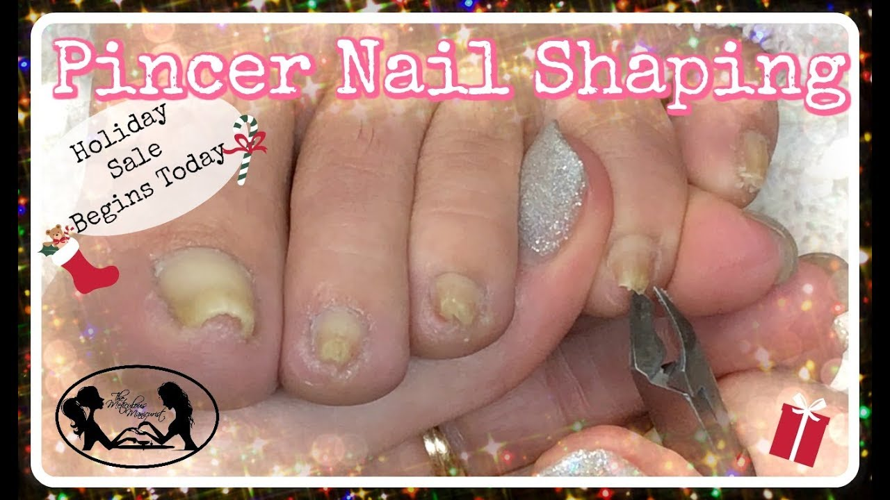 Pedicure Tutorial How To Cut And Shape Pincer Toenails At Home