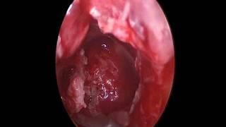Gambar cover عملية تسوس  الأذن الوسطى