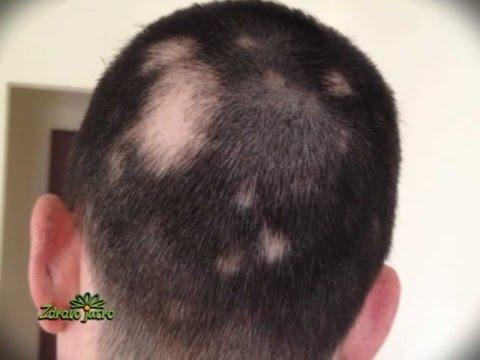 Najbolja proteinska maska za kosu