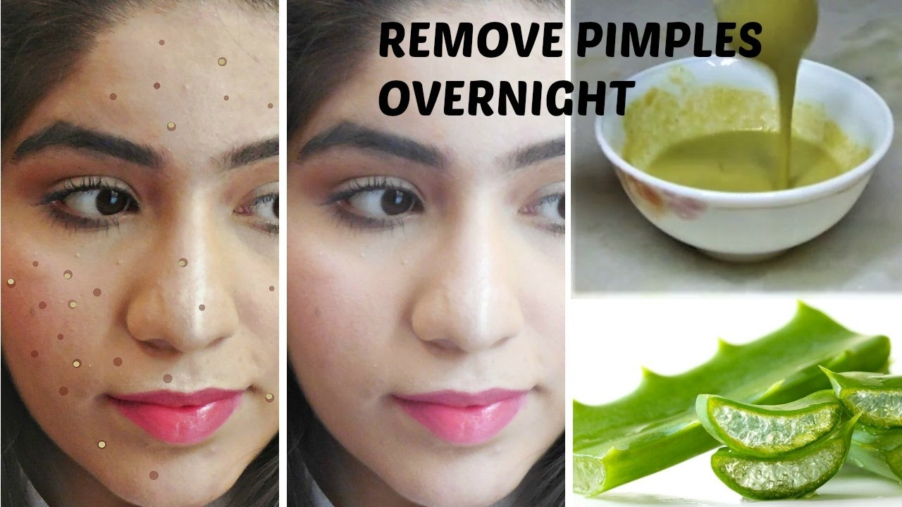 Of pimples overnight ways to rid natural get How to