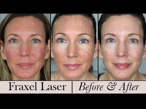 facial results Fraxel