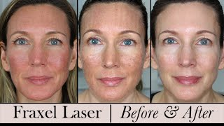 fraxel face laser before after 3 month update