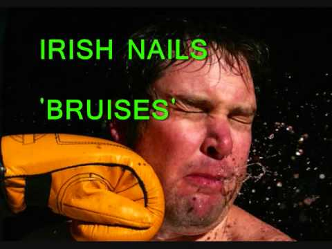 IRISH NAILS BRUISES