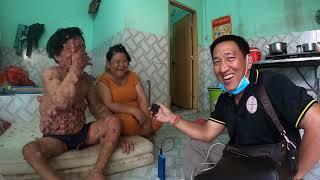 Anh Bị Bệnh Lạ lần Đầu Tiết lộ Có 3 Đời vợ | Hội Thiện Nguyện BDS
