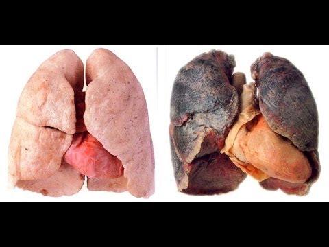 Smoking quitting