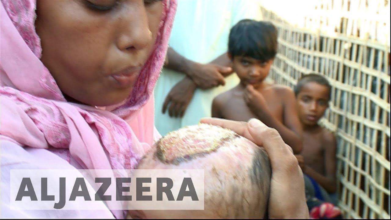 UN: Rohingya face world's most urgent refugees crisis