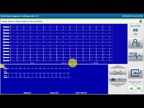 Welch Allyn® Diagnostic Cardiology Suite™ Resting ECG Workflow #cardiology
