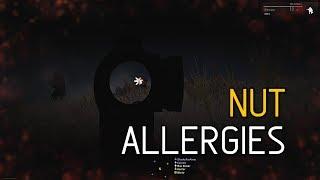 Nut Allergies - ShackTac