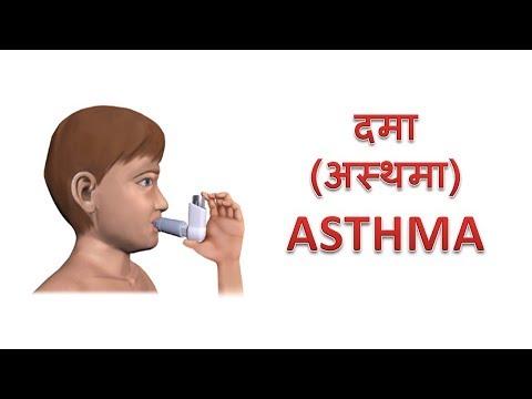 asthma-/दमा-(अस्थमा)
