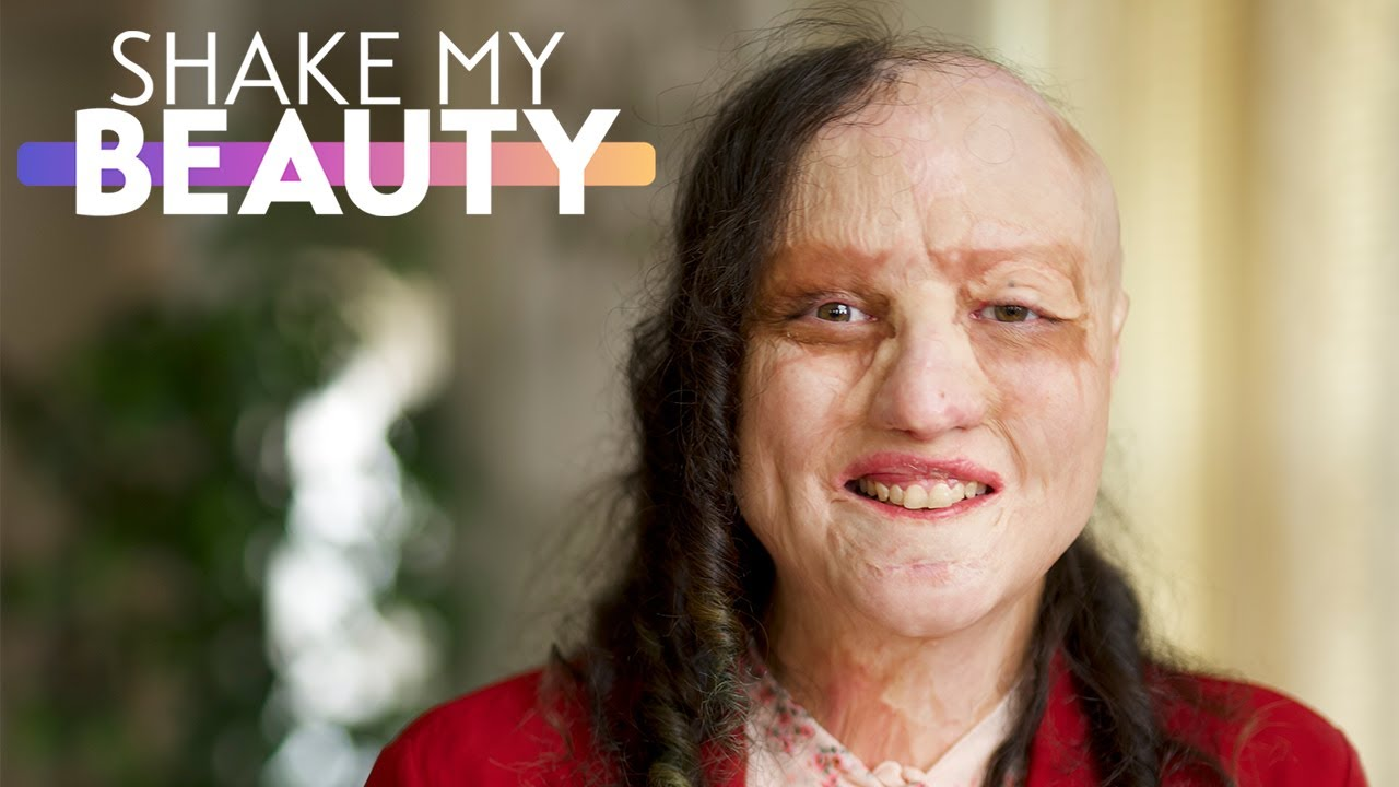 I Suffered 65% Burns When I Was 1 | SHAKE MY BEAUTY