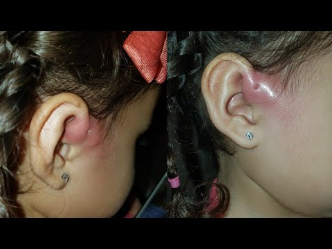 Life Update! My 2 yr old has Preauricular Sinus Infections!