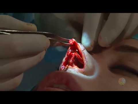 Анна Якунина Дом 2  Ринопластика, операция пластики носа 1