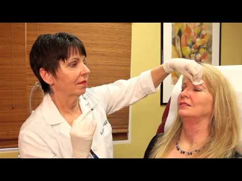Botox Injection with Dr. Kathleen Griffin at The G Spa in Santa Barbara