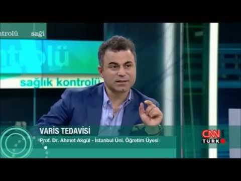 Yanlış Ve Eksik Yapılan VARİS Ameliyatları Ve VARİS Tedavileri - Prof. Dr. Ahmet AKGÜL