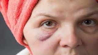 Do inchaço rosto para medicamento