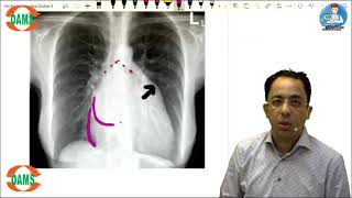 Radiology MCQ Discussion | DAMS Faculty Dr Sumer Sethi